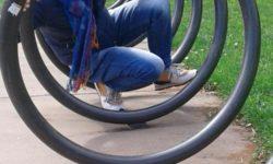 Mobilità ad un anno da intervento all'anca